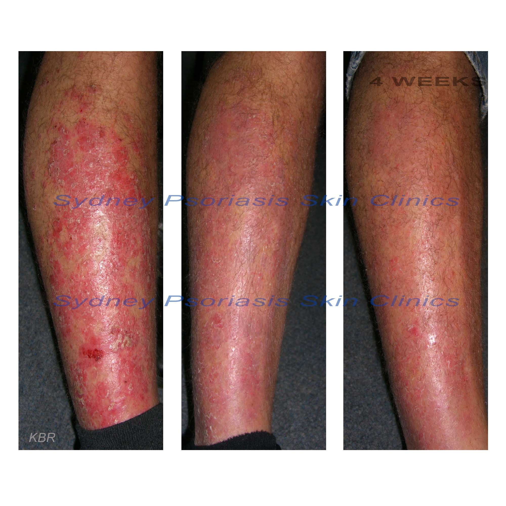 Chronic Plaque Psoriasis (Psoriasis Vulgaris)<