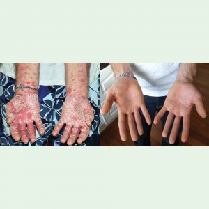 Chronic Plaque Psoriasis (Psoriasis Vulgaris) - Hands