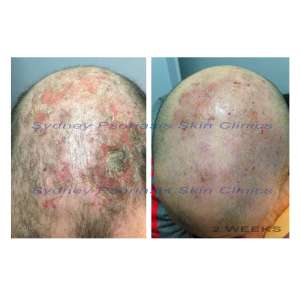 Chronic Plaque Psoriasis (Psoriasis Vulgaris)